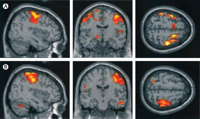Neurobehavioural effects of developmental toxicity – The Lancet Neurology