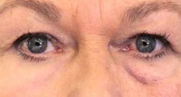 'Second Skin' May Reduce Wrinkles, Eyebags, Scientists Say – The New York Times